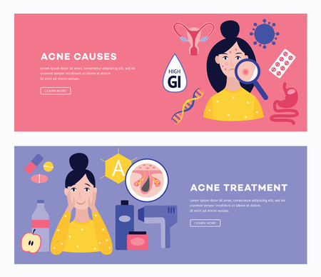 Set of two posters or banners showing the causes and methods of treating acne and pimples flat cartoon vector illustration. Healthy lifestyle and facial care concept.