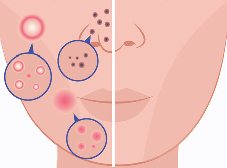Woman face before and after acne treatment procedures flat cartoon vector icons illustration isolated on white background. Comparison of healthy and problem skin. 向量圖像