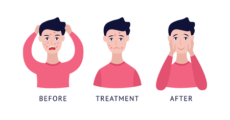 Set of man with acne before and after treatment cartoon flat style, vector illustration isolated on white background. Steps of male problem pimply skin treatment and care 向量圖像