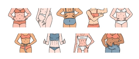 Female body set with different weight and shape, pinching belly fat or leg rolls, measuring waist, fitness and diet difference - hand drawn isolated vector illustration on white backgroun Иллюстрация