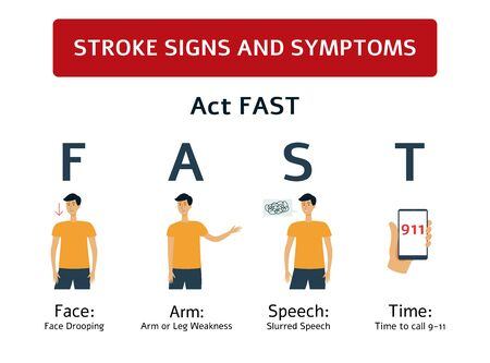 Stroke signs - symptoms of brain and heart health problem. Face drooping, weakness, slurred speech on a cartoon man, medical prevention warning and first aid poster - isolated flat vector illustration