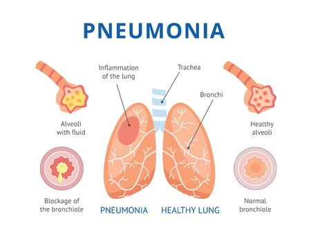 Medical infographics of human pneumonia. The lungs are healthy and diseased lungs with pneumonia. Isolated vector flat illustration. Ilustracja