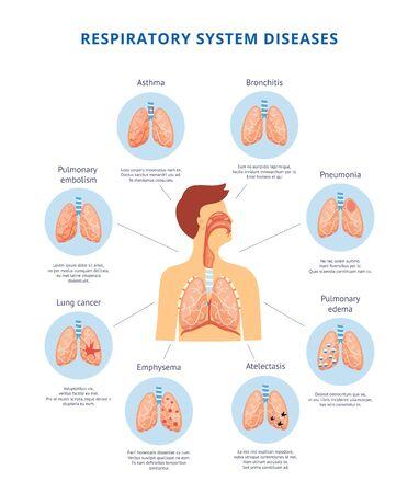 Diagrama informativo de enfermedades del sistema respiratorio humano con ilustración de vector de imagen corporal de hombre. Mesa de anatomía y fisiología para instituciones médicas y educativas. Ilustración de vector