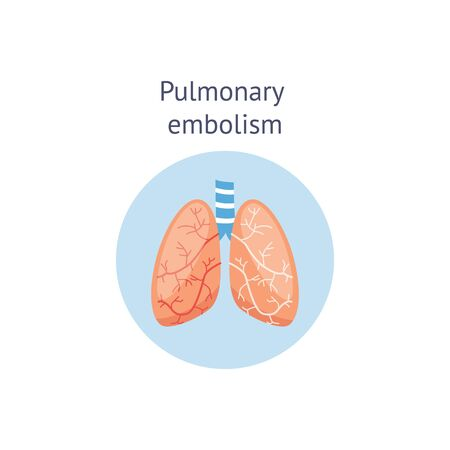 Pulmonary embolism or blockage of the main artery of the lung by a blood clot medical educational scheme or diagram, vector illustration isolated on white background.