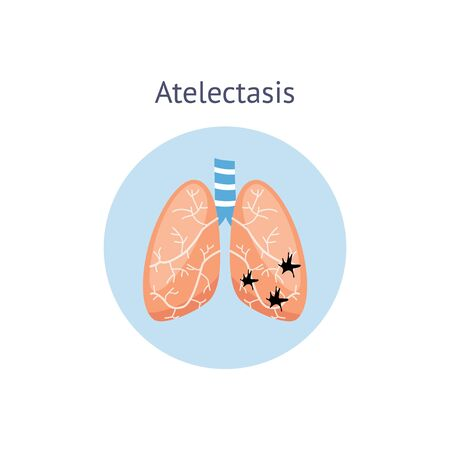 Atelectasis a medical educational scheme of lung disease vector illustration isolated on white background. Anatomical image of human unhealthy respiratory system.