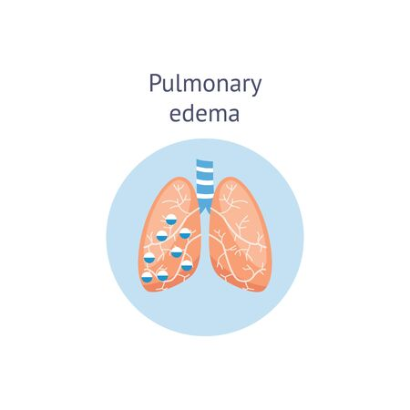 Pulmonary edema lung disease diagram with bronchi and fluid leakage in alveoli vector illustration isolated on white background. Chest of human body anatomical scheme.