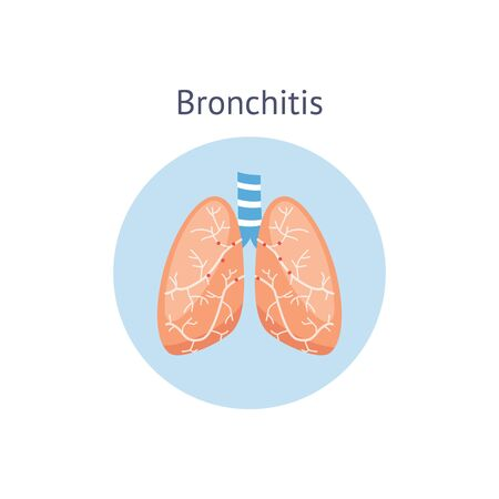 Bronchitis a lung disease and illness medical anatomical diagram vector illustration isolated on white background. Pulmonary bronchi problem of human respiratory system.