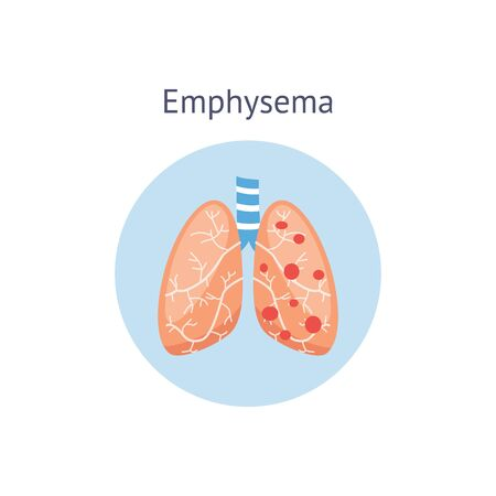 Emphysema chronic obstructive pulmonary disease diagram showing a cross-section of normal lung and lungs damaged by COPD, vector illustration isolated on white background.