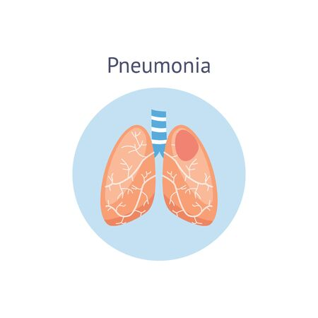 Diagramme de la maladie de la pneumonie une différence d'illustration vectorielle de poumons sains et endommagés isolée sur fond blanc. Symbole du système respiratoire à usage médical et scientifique.
