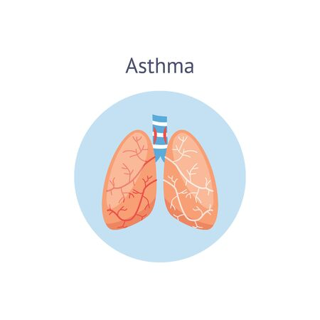 Medical icon of human asthma with lungs. The lungs are healthy and sick with asthma. Isolated vector flat illustration, human anatomy.