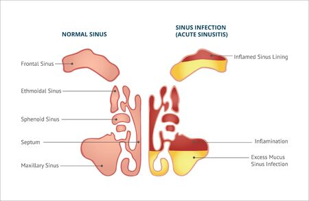 Medical infographic of sinus, normal sinus and sinus infection or sinusitis. Isolated vector flat illustration, human nasal anatomy.
