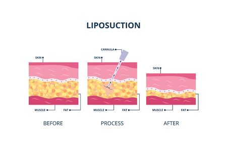 Suction-assisted liposuction procedure - hollow tube inserted in skin to fat suctioned, vector illustration isolated on white background. Underskin body fat banner.