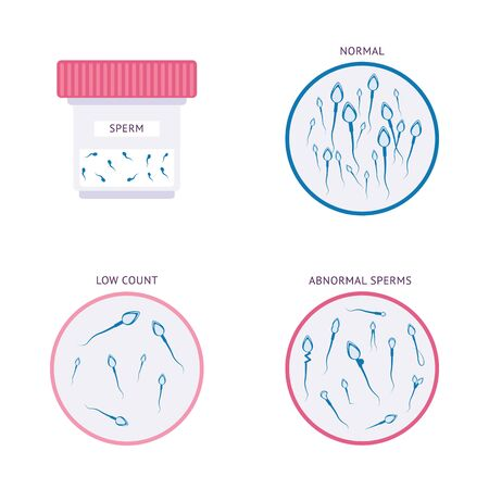 Isolated male infertility set - sperm types and medical jar drawings for male fertility and reproductive health research. Flat vector illustration on whtie background.