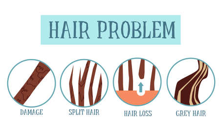 Hair problem set poster. Brown hair health damage examples - split ends, falling out and grey streaks. Vector illustration isolated on white background.