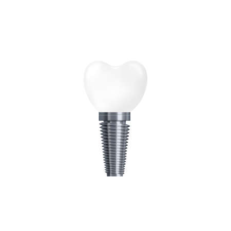 Dental implant isolated on white background - realistic white ceramic tooth with silver metal screw, vector illustration of medical prosthesis.
