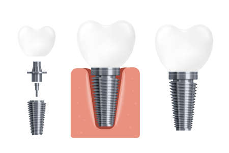 Dental implant construction and implementation. Dentist equipment for work to change crowns, flat cartoon vector illustration isolated white background