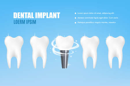 Dental implant poster - realistic mockup of tooth replacement ad poster. White teeth with one artificial prosthesis with metal rotating screw, vector illustration.