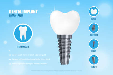 Realistic 3d vector illustration dental implant structure with its parts - crown, abutment, screw. Medical poster or banner with dental implant advertisement.