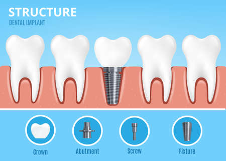 Dental implant structure. Crown and abutment with screw and fixture. Dentist professional equipment for work to implement, flat cartoon vector illustration
