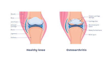Banner with detailed medical human anatomy with knee osteoarthritis and normal healthy joint. Chronic painful disease of the cartilage and bone. Vector flat illustration on white. Vectores