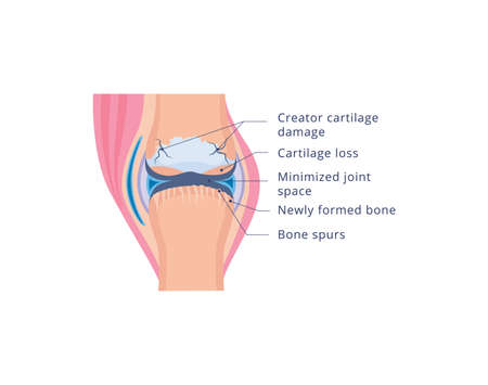 Medical infographic of human knee joint damage with osteoarthritis, flat vector illustration isolated on white background. Info banner of deformities and joint disease.