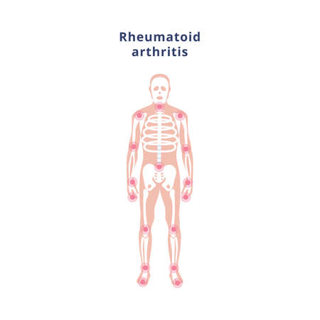 Chronic disease rheumatoid arthritis of the joints and bones. The human skeleton with the sources of pain. Medical poster. Vector flat illustration
