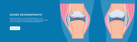 Disease of the knee joint. Osteoarthritis joint and healthy. Medical information banner with text. Healthy and unhealthy leg. Vector flat illustration