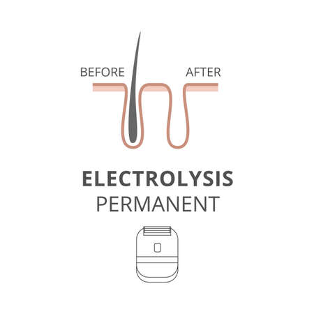 Electrolysis permanent for hair removal before after a vector illustration.