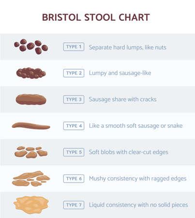 Bristol stool chart for faeces type classification, flat vector illustration. Vector Illustratie