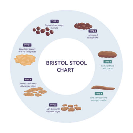 Bristol stool chart infographic, flat vector illustration isolated on white.