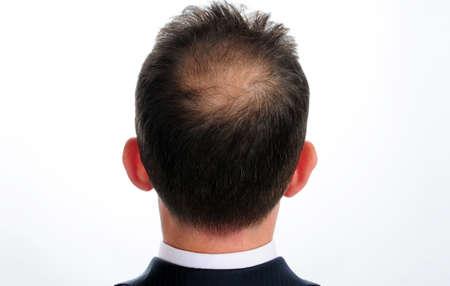 perdita di capelli nell'uomo Archivio Fotografico