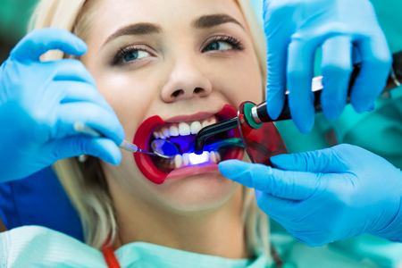 Dentists hands working on young woman patient with dental tools. Female patient with retractor at the dentist.