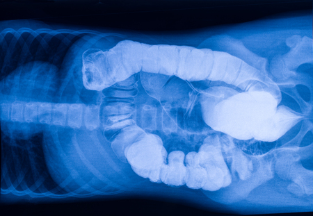 intestinal cancer: X-ray picture of the intestine with foreign bodies Stock Photo