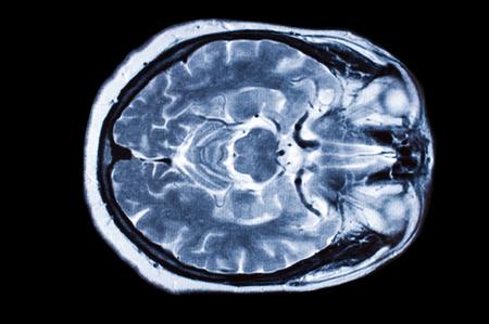 Imagen de rayos X de la tomografía computarizada del cerebro. Foto de archivo