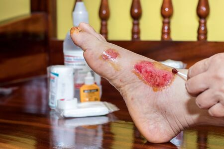 Fresh blood blisters on women's feet,reflection and side effect from motorcycle accident lesion injuries