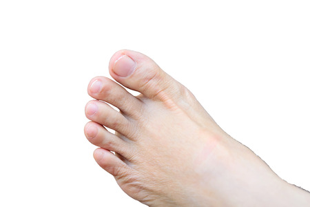 bunion: The toe is shorter than the fingers, but there are an equal number of inches. Stock Photo