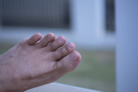 Toe fingernails that are longer than the fingertips need to be cut off for proper care of the feet.