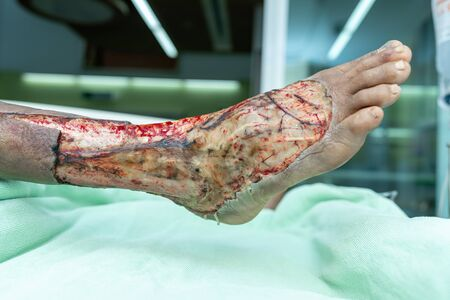Necrosis and skin surgical wounds in patients with diabetes while undergoing treatment in the intensive care unit.
