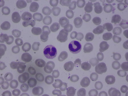 malaria: Malaria infected red blood cells