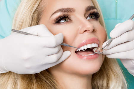 Porcelain veneers. Pretty female model with perfect smile. Young beautiful woman with beautiful white teeth sitting on a dental chair. Teeth whitening.
