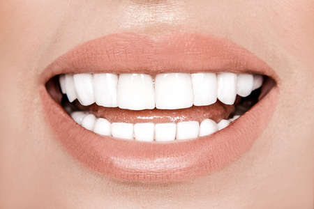 Porcelain veneers. Laughing woman with perfect teeth over white background. Whitening concept. Dentistry. Smile with white teeth.