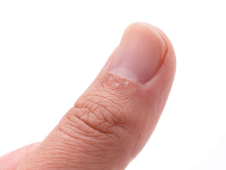 A close-up of a man's finger hangnail on a white background