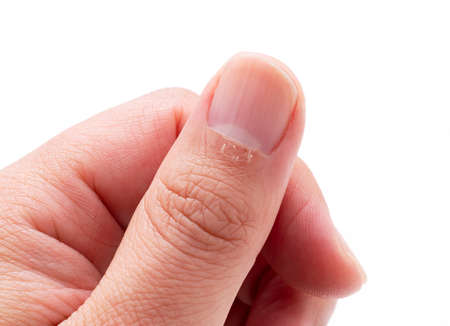 A close-up of a man's finger hangnail on a white background Archivio Fotografico