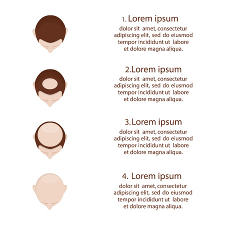Modern vector illustration of baldness. Hair loss stages set. Different stage of baldness.