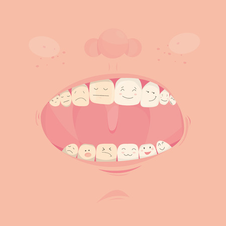 Modern vector illustration of open cute mouth with cartoon friendly teeth. Before and After Bleaching treatment. Teeth whitening
