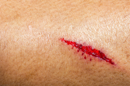 Closeup deep wounds from sharp objects on human skin. Imagens