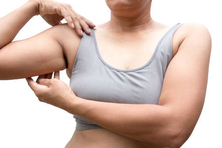 体脂肪の腕の不均衡を持つ女性。