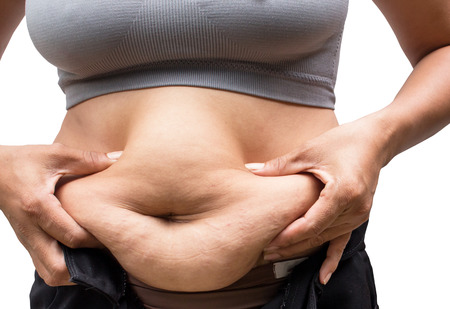 Women with fat belly and stretch marks. Stock Photo