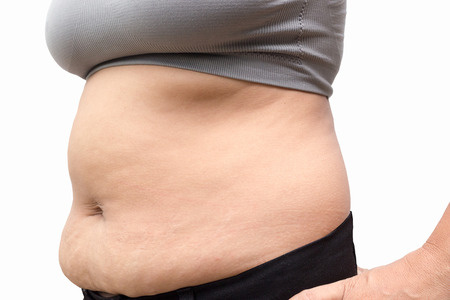 fat belly: Women with fat belly and stretch marks. Stock Photo