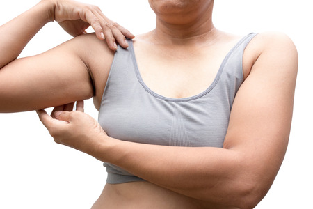 imbalance: Women with arm imbalance of body fat.